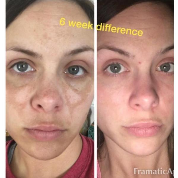 Admire My Skin Serum, 2% Hydroquinone Helps Fade Dark Spots & Melasma - This Will Provide You With That Perfect Even Toned Complexion - Also Contains Salicylic Acid, Kojic Acid, Azelaic Acid, Lactic Acid, Salicylic Acid